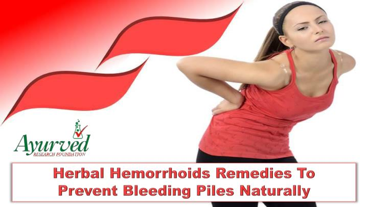 Herbal Hemorrhoids Remedies To