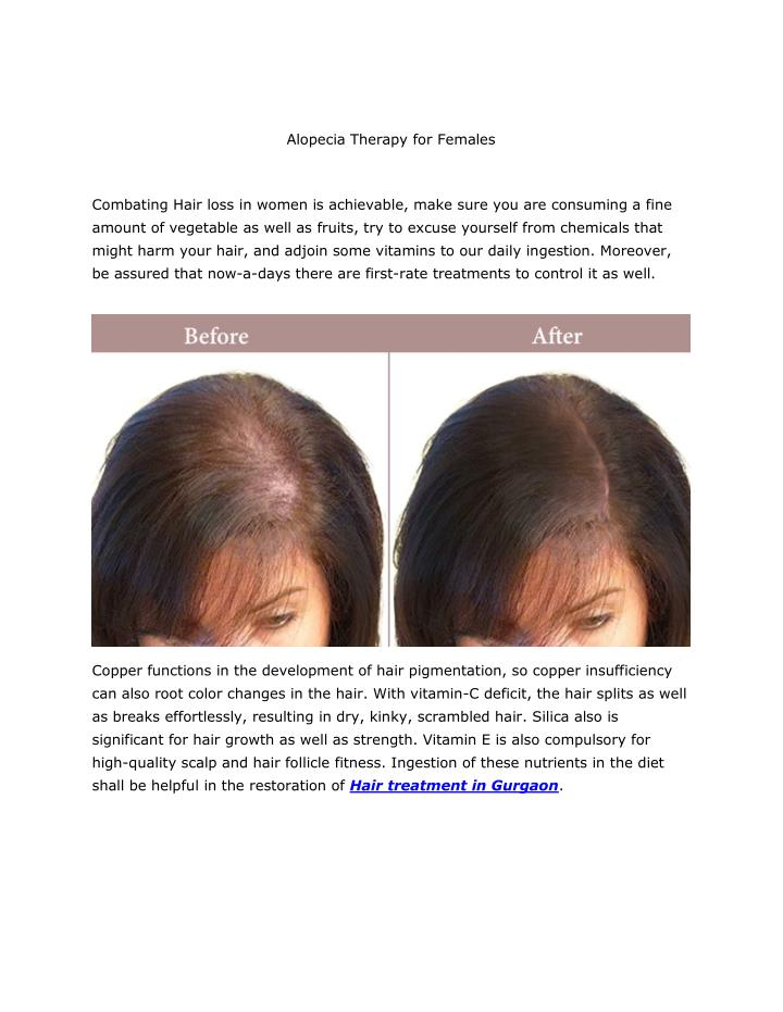 Alopecia Therapy for Females
