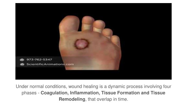 Under normal conditions, wound healing is a dynamic process involving four phases -