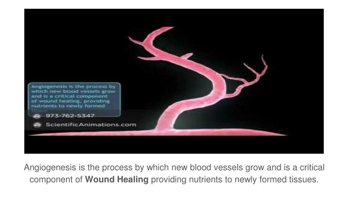 Angiogenesis is the process by which new blood vessels grow and is a critical component of