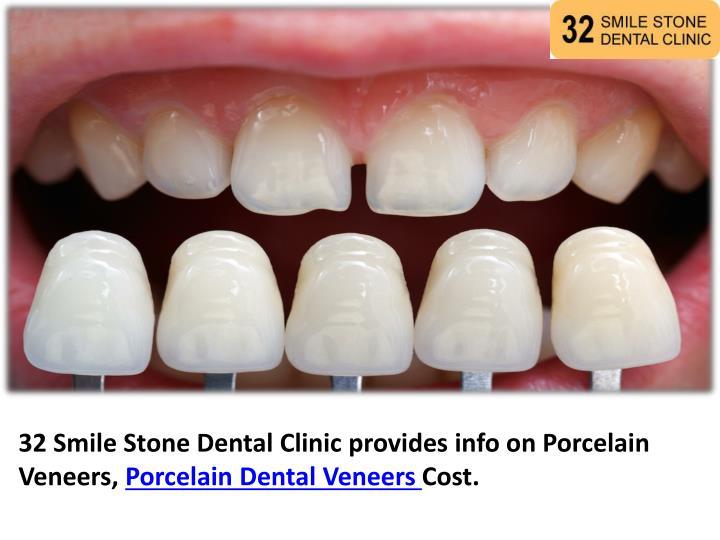 32 Smile Stone Dental Clinic provides info on Porcelain Veneers,