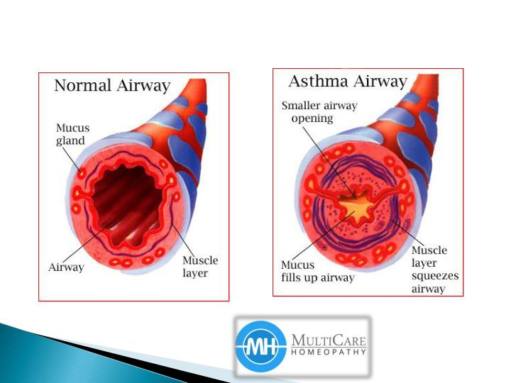 Best homeopathy for treating asthma