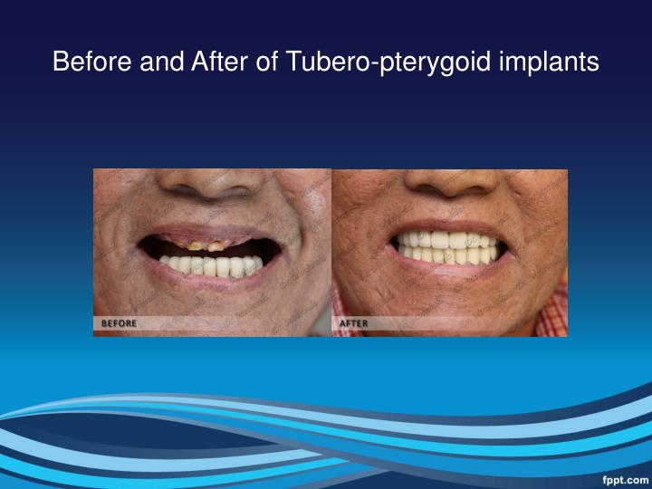 Before and After of Tubero-pterygoid implants