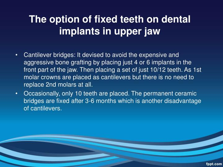 The option of fixed teeth on dental implants in upper jaw
