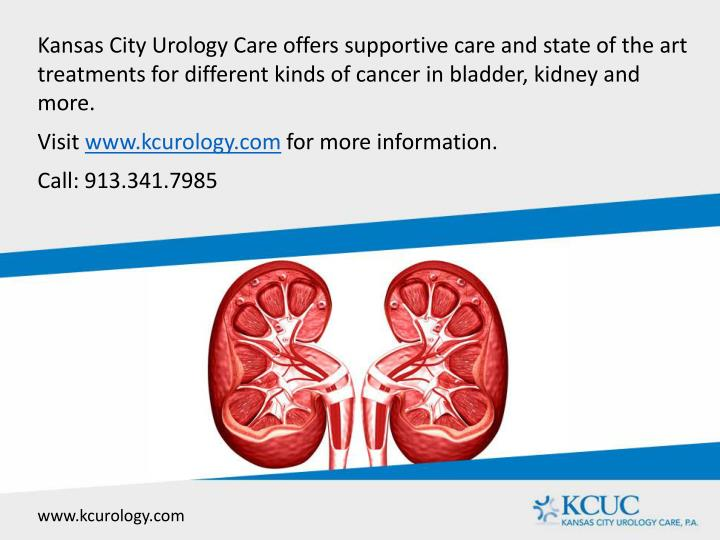 Kansas City Urology Care offers supportive care and state of the art treatments for different kinds of cancer in bladder, kidney and more.