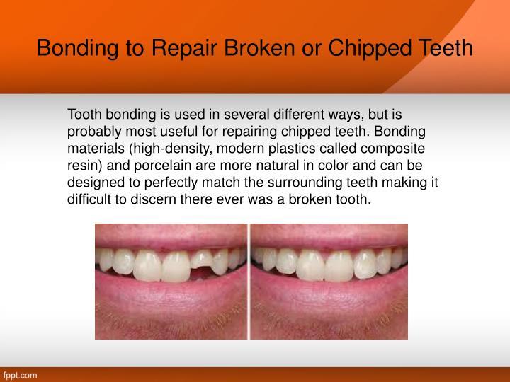 Bonding to Repair Broken or Chipped Teeth