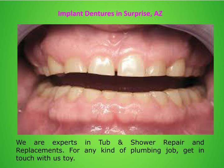 Implant Dentures in Surprise, AZ