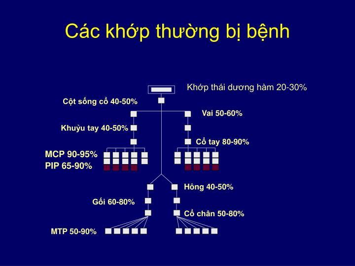 MCP 90-95%
