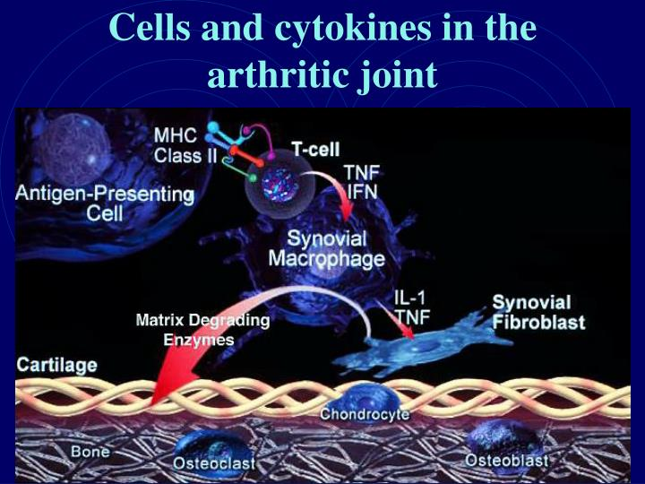 Cells and cytokines in the arthritic joint