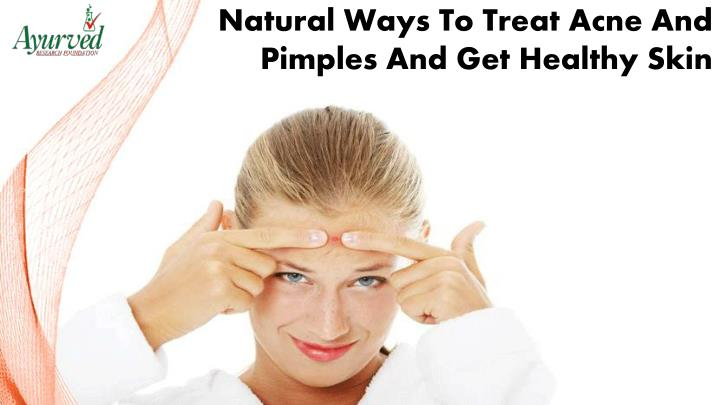 Natural Ways To Treat Acne And Pimples And Get Healthy Skin