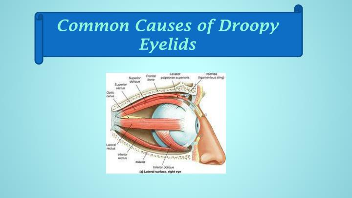 Common Causes of Droopy Eyelids
