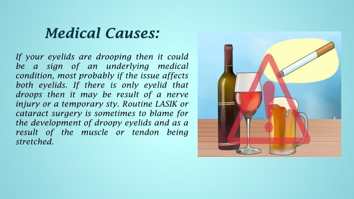 Medical Causes: