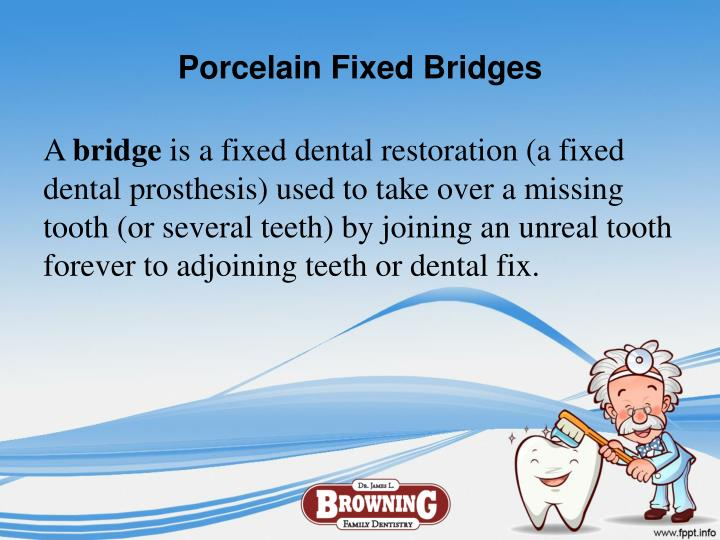 Porcelain Fixed Bridges