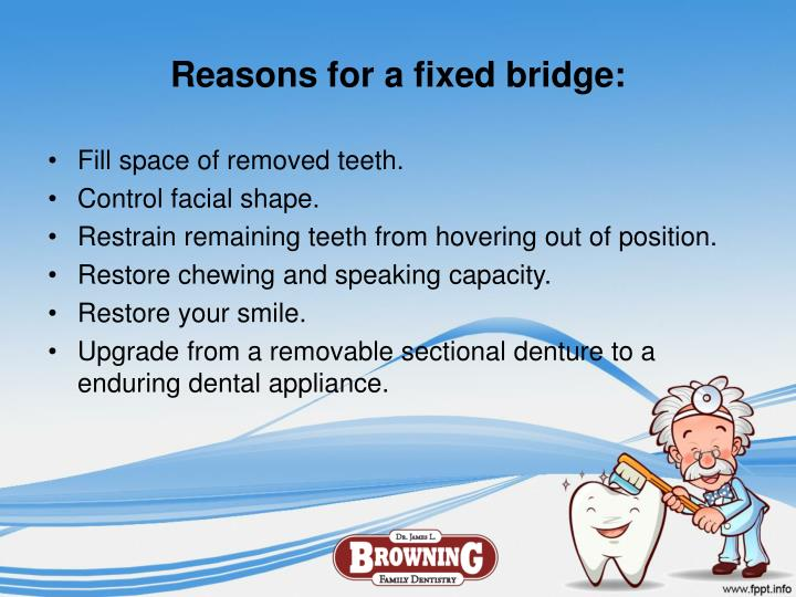 Reasons for a fixed bridge: