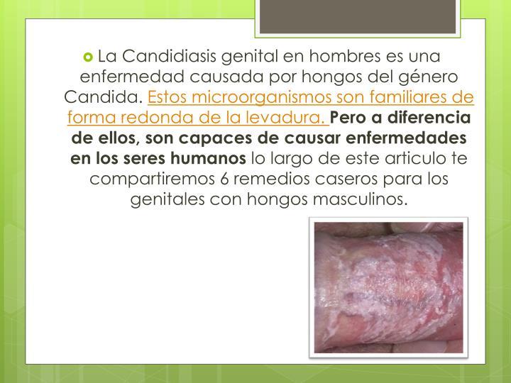 La Candidiasis genital en hombres es una enfermedad causada por hongos del género