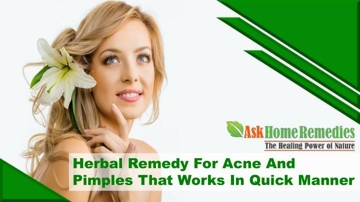 Herbal Remedy For Acne And Pimples That Works In Quick Manner