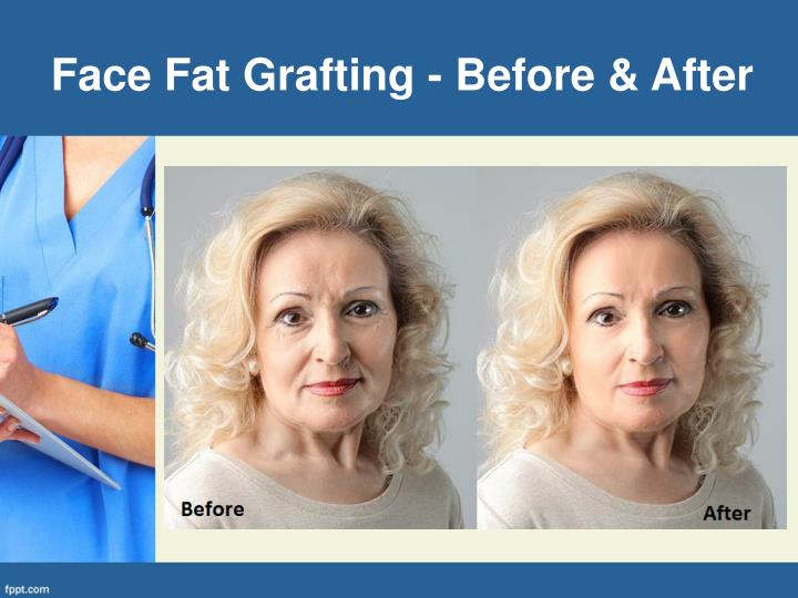 Face Fat Grafting - Before & After