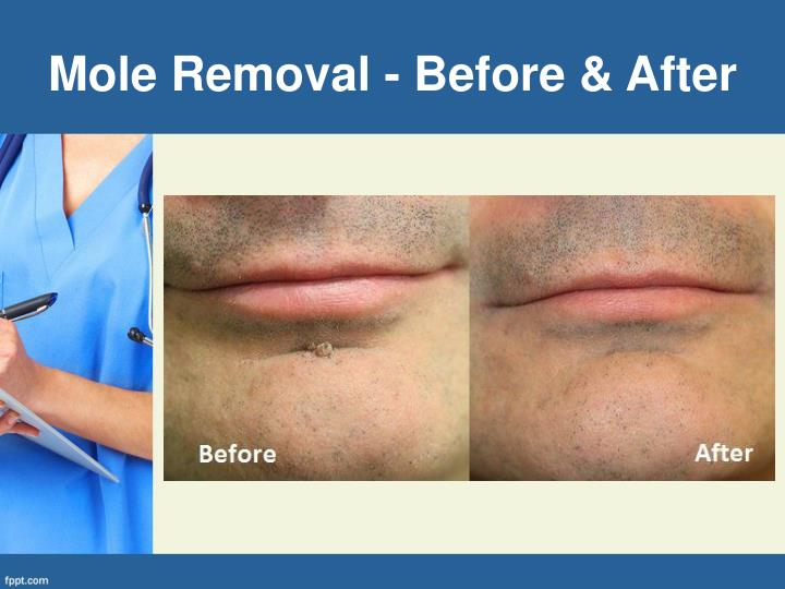 Mole Removal - Before & After