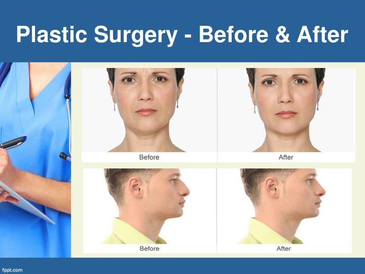 Plastic Surgery - Before & After