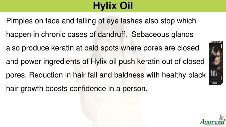 Hylix