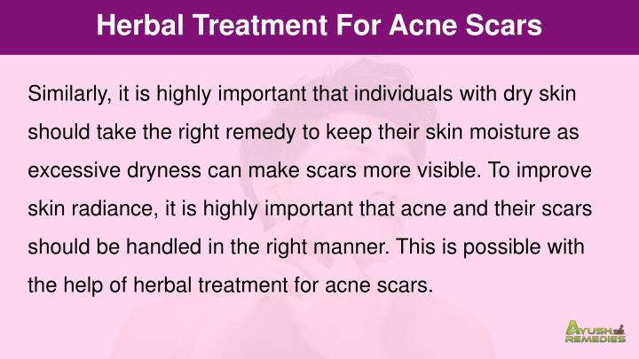 Herbal Treatment For Acne Scars
