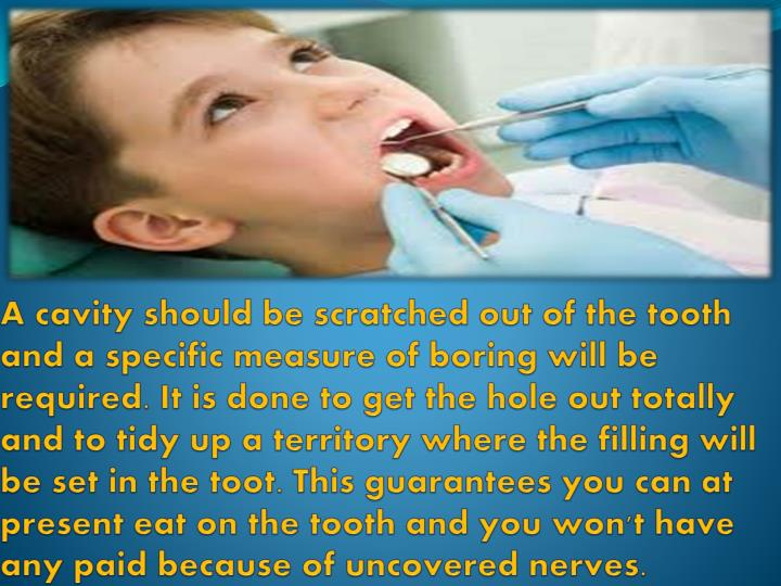 A cavity should be scratched out of the tooth and a specific measure of boring will be required. It is done to get the hole out totally and to tidy up a territory where the filling will be set in the toot. This guarantees you can at present eat on the tooth and you won't have any paid because of uncovered nerves.