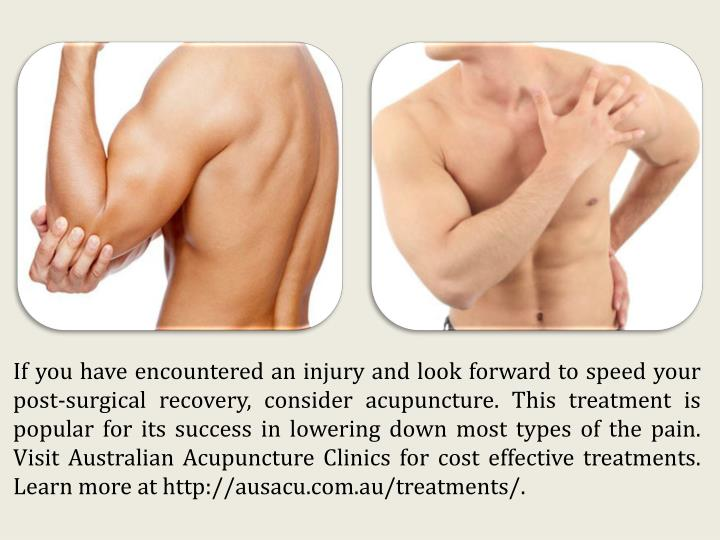 If you have encountered an injury and look forward to speed your post-surgical recovery, consider acupuncture. This treatment is popular for its success in lowering down most types of the pain. Visit Australian Acupuncture Clinics for cost effective treatments. Learn more at http://ausacu.com.au/treatments/.