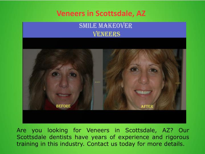 Veneers in Scottsdale, AZ