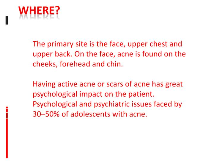 The primary site is the face, upper chest and upper back. On the face, acne is found on the cheeks, forehead and