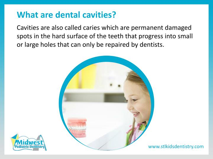 What are dental cavities?
