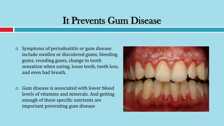 It Prevents Gum Disease