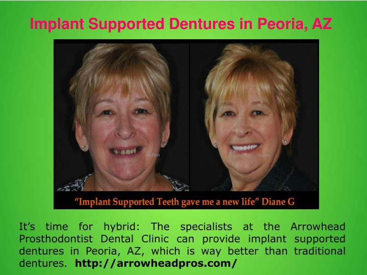 Implant Supported Dentures in Peoria, AZ