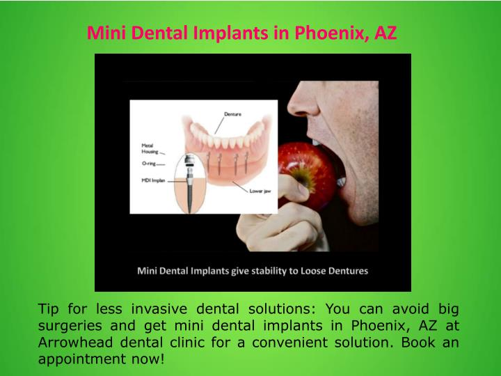 Mini Dental Implants in Phoenix, AZ