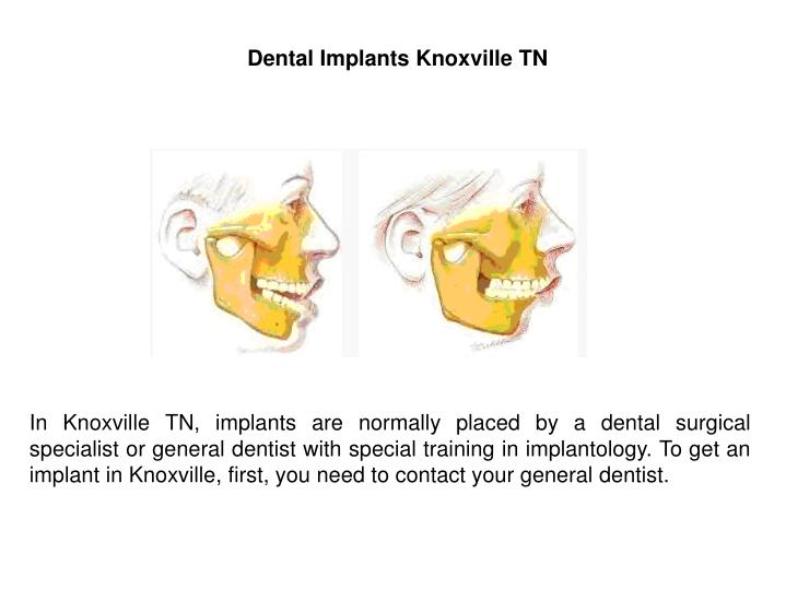 Dental Implants Knoxville TN