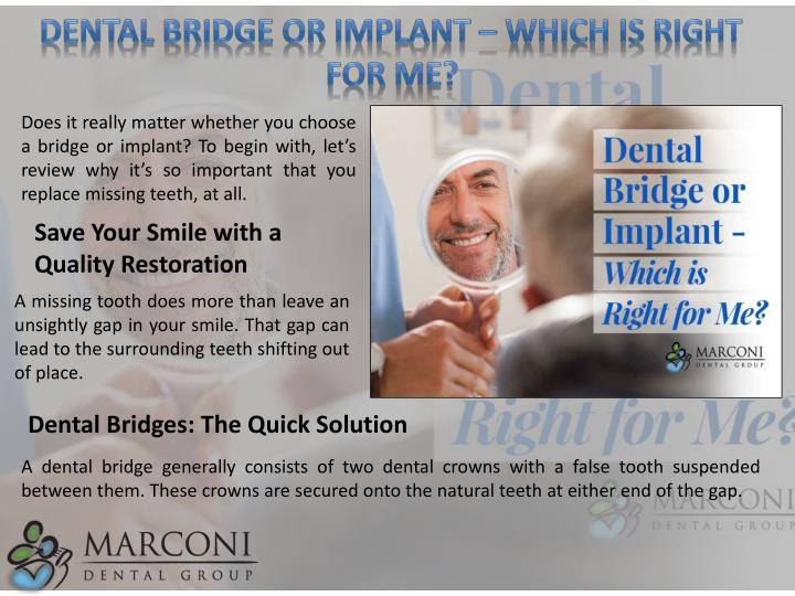 Dental Bridge or Implant – Which is Right for Me?