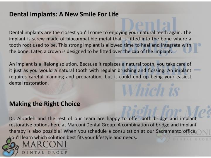 Dental Implants: A New Smile For Life