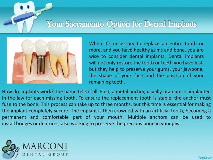 Your Sacramento Option for Dental