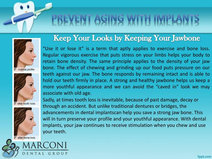 Prevent Aging with Implants
