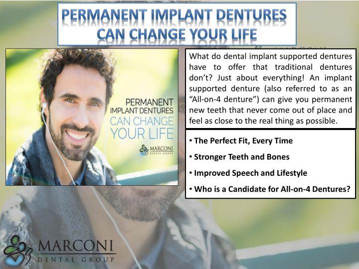 Permanent Implant Dentures