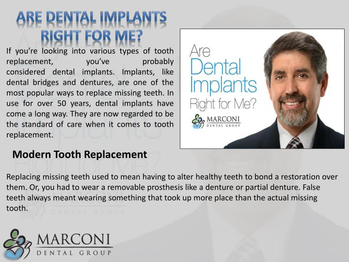 Are Dental Implants Right for Me?