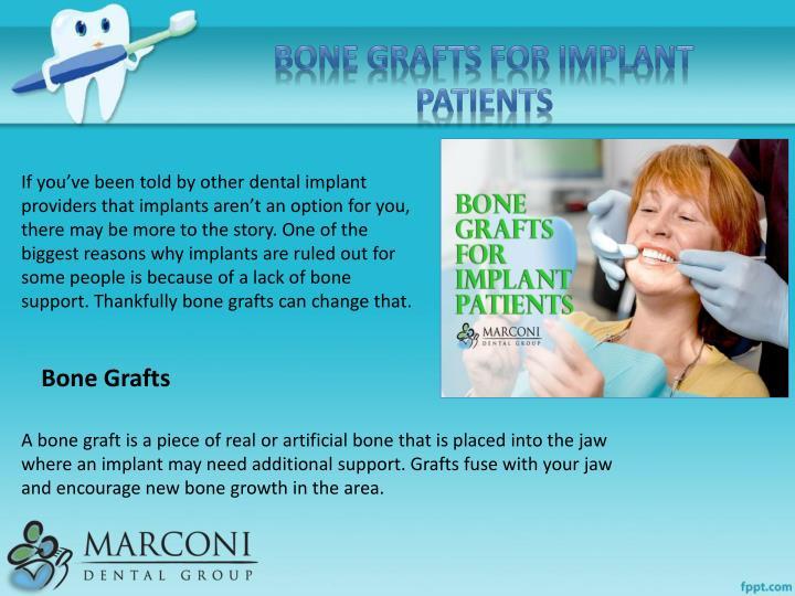 Bone Grafts for Implant Patients