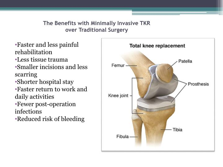 The Benefits with Minimally Invasive TKR over Traditional Surgery
