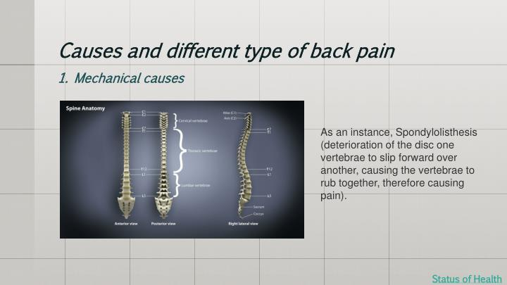 Causes and different type of back pain