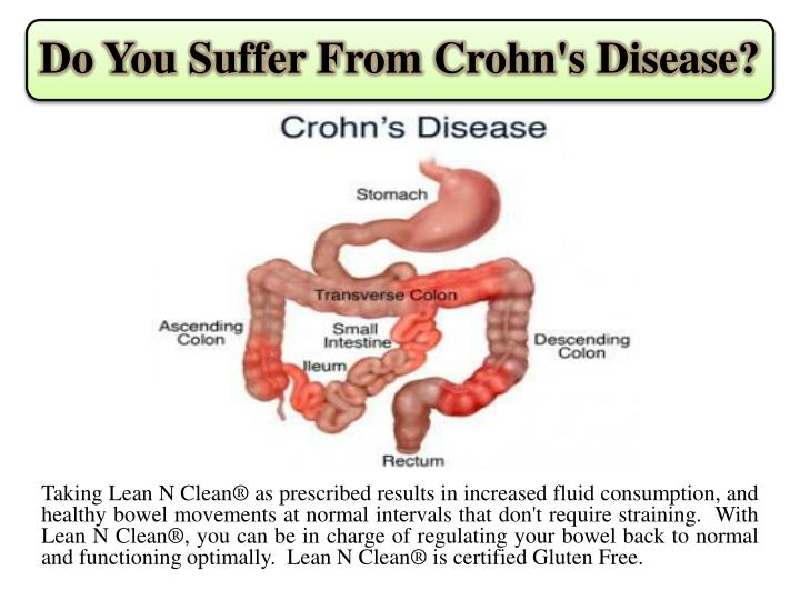Do you suffer from crohn s disease