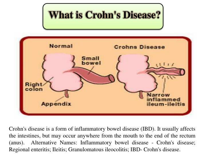 What is crohn s disease