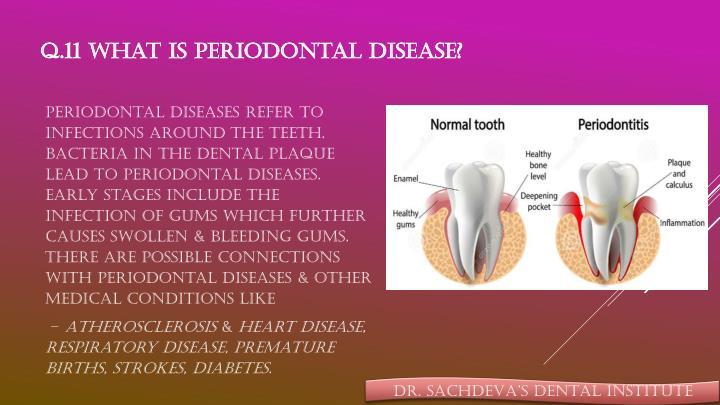 Q.11 What is periodontal disease?