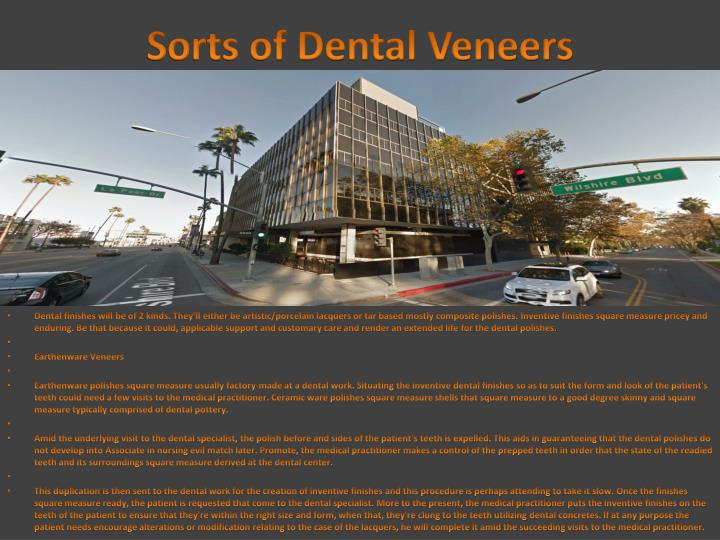 Sorts of Dental Veneers