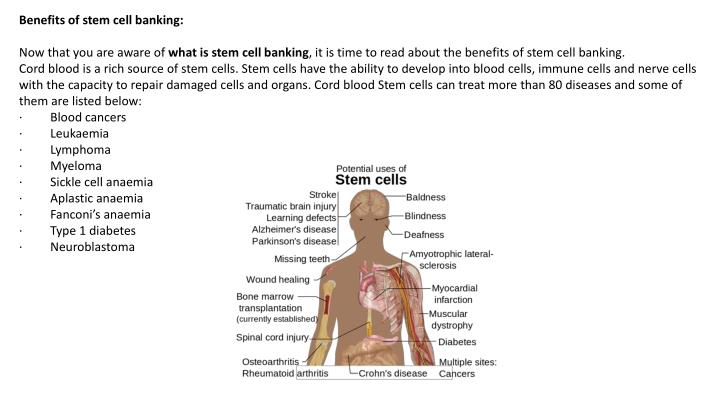 Benefits of stem cell banking:
