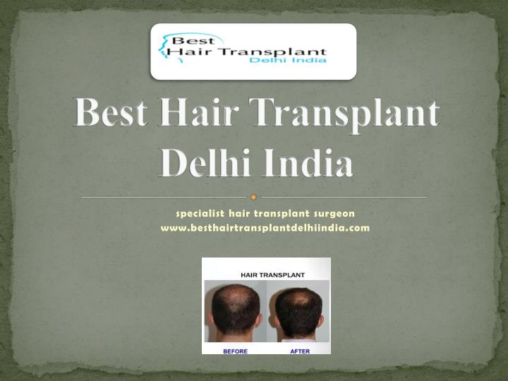 Best hair transplant delhi india