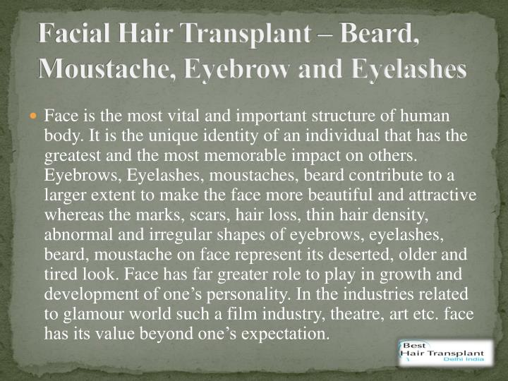Facial Hair Transplant – Beard,